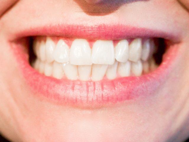Nové zuby vám zachovají zdraví a zvednou sebevědomí