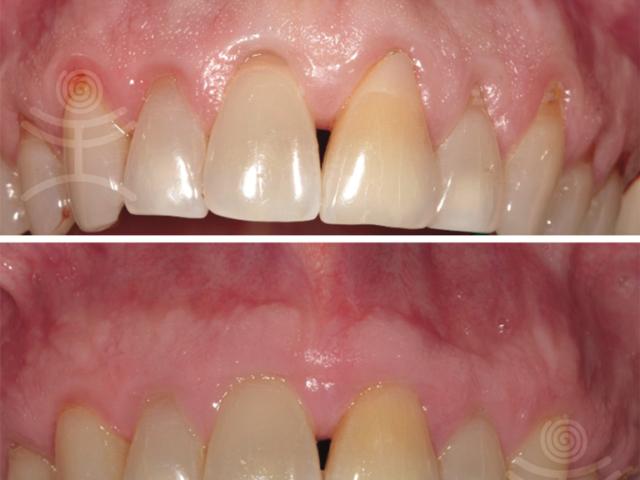 Začněte řešit onemocnění parodontu včas